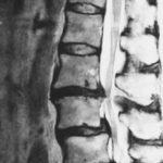 脊柱管狭窄症・ヘルニアで苦しんでいた痛みが背骨コンディショニングで改善しました!